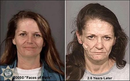 La metanfetamina Cristal Meth, e l'invecchiamento della pelle.